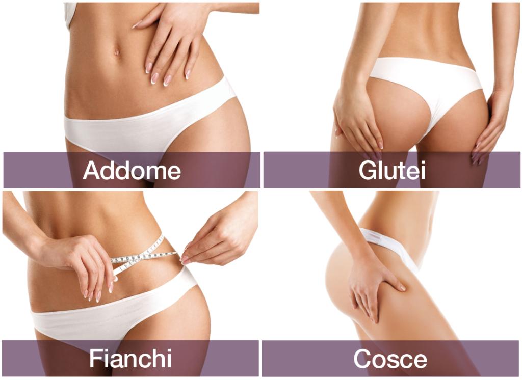 zone trattate del corpo con l'hifu